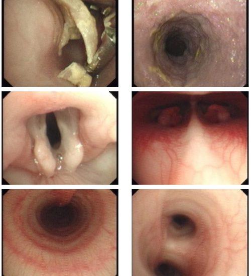 https://www.cliniqueveterinairedugolfe.fr/wp-content/uploads/2020/11/bloc-endoscopie-500x550.jpg
